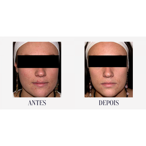 Acne Star - Tratamento da Acne