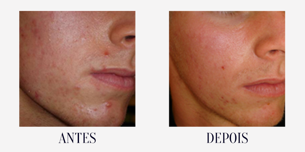 BEFORE-AFTER-acne4.png