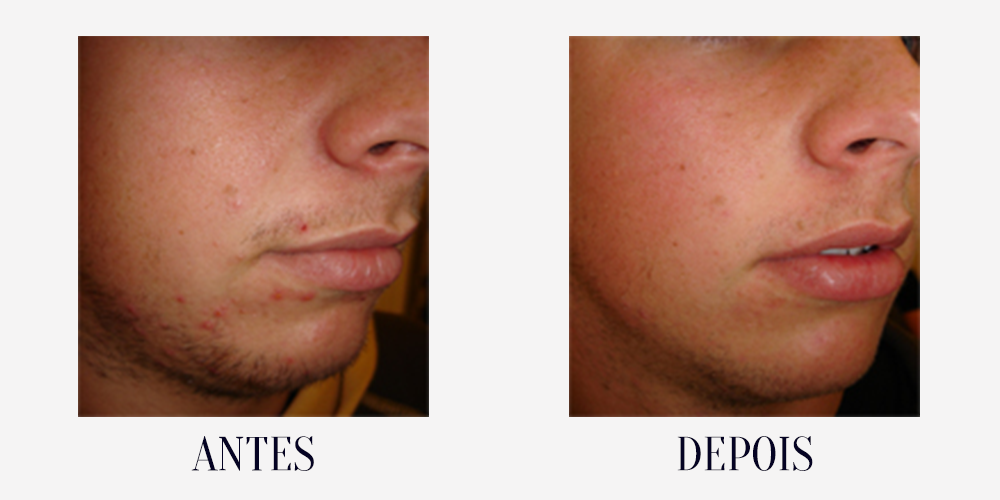 BEFORE-AFTER-acne5.png
